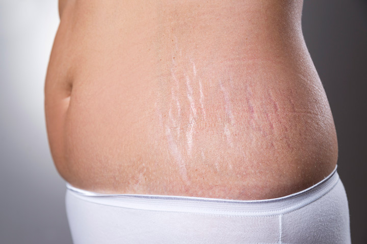 Remove-Stretch-Marks-After-Pregnancy.jpg