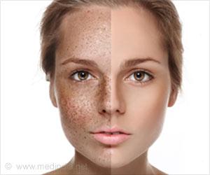 skin-pigmentation